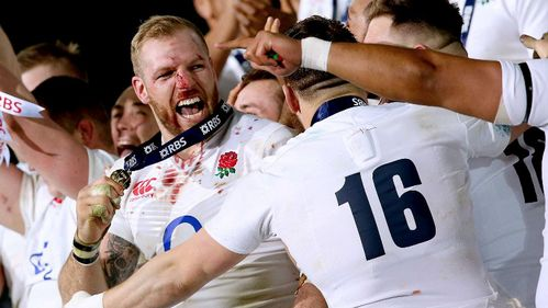 England's Haskell ruled out for up to six months